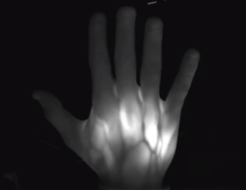 Tecnologia para monitoramento e controle da higienização das mãos